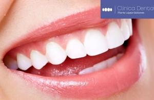 Implante dental de titanio por 235 euros